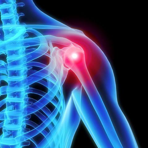 Patologie della spalla