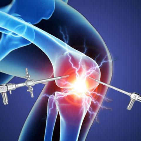 Chirurgia Artroscopica